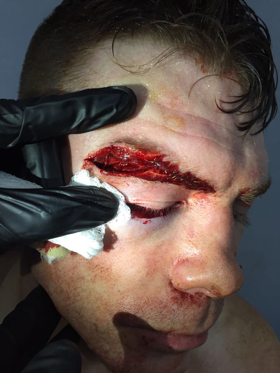 Paul Felder ferimento